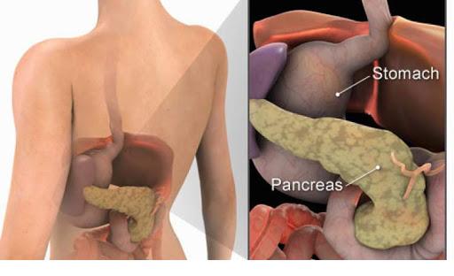 چه اطلاعاتی در رابطه با مزایای عمل لوزالمعده برای درمان دیابت دارید؟