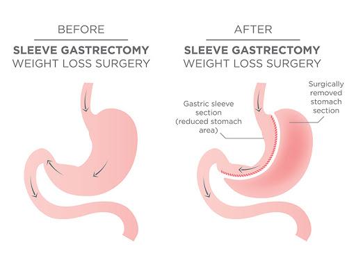 جراحی کاهش وزن تنها بخشی از یک برنامه درمانی کلی است