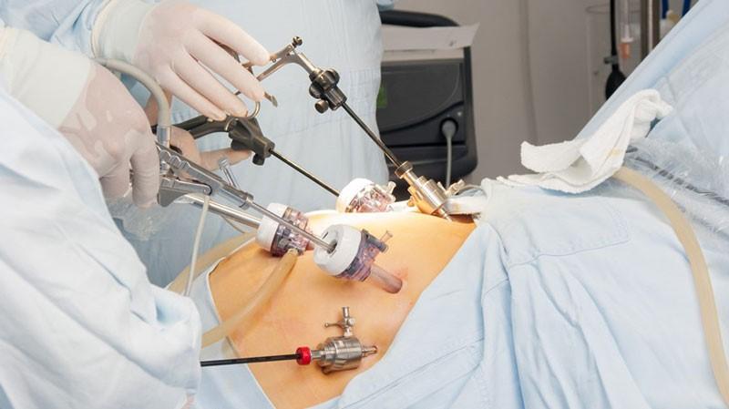 جراحی لاپاراسکوپی را می توان از طریق بی حسی موضعی برای بیماران استفاده نمود