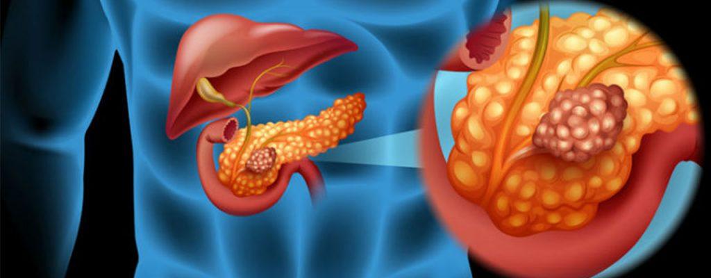 نتیجه انجام عمل لوزالمعده برای درمان دیابت