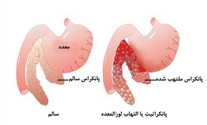 نشانهها و علائمی در صدد شکلگیری این بیماری صورت میگیرد که مهمترین آنها شامل موارد زیر میشود.