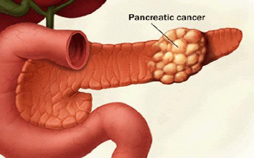 عوامل خطرساز برای مبتلا به سرطان پانکراس