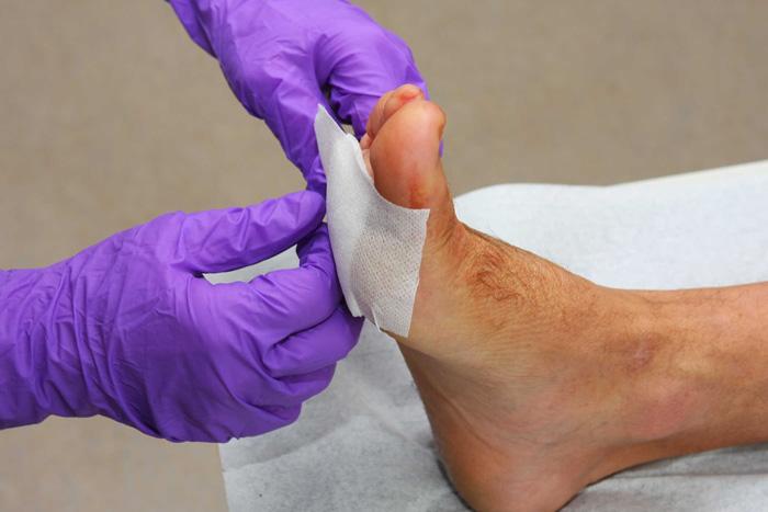 درمان زخم پای دیابتیها با گیاه آب قاشقی