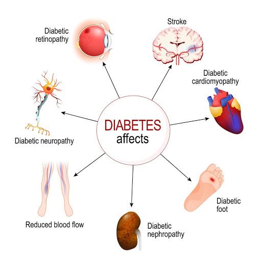 روشهای درمانی بیماری دیابت کدامند؟