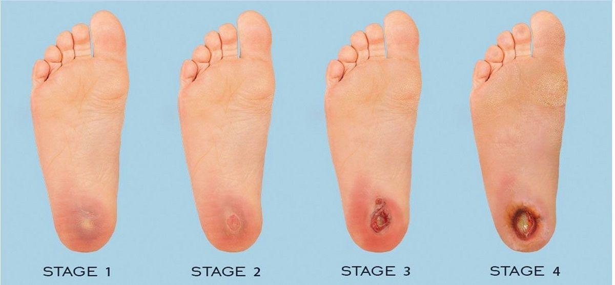 کفش مناسب در زخم پای دیابتی با در نظر گرفتن چه فاکتورهایی باید انتخاب شود؟