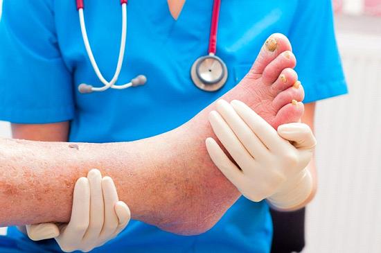 درجه بندی زخم پای دیابتی