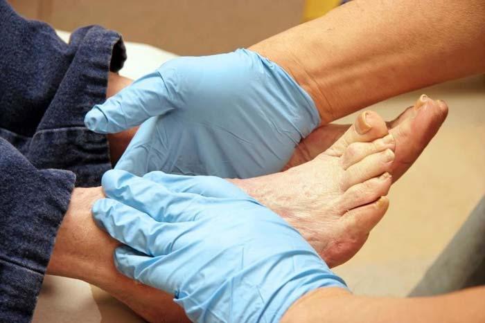 تغییر وضعیت عروق پا