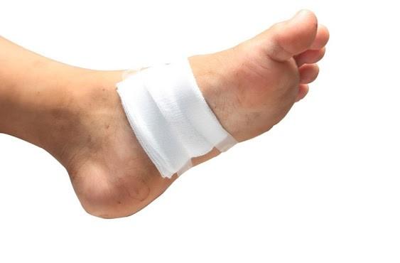 مراقبت های غذایی برای پیشگیری از زخم پای دیابتی به چه صورت است؟