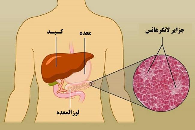 پیوند پانکراس برای درمان سرطان چگونه انجام میگیرد؟