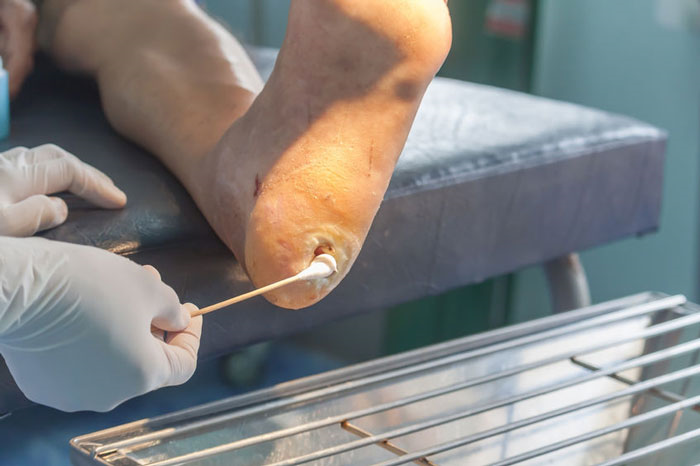 درمان زخم پای دیابتیها با آلوئه ورا