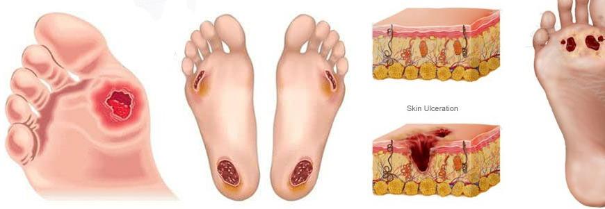 درمان زخم پای دیابتیها با ریشه ریواس