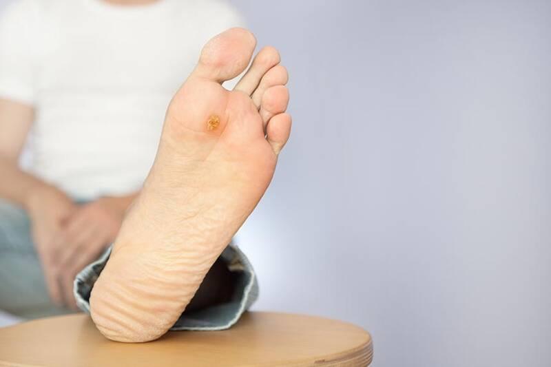 در صورت عفونت در زخمهای دیابتیها، موارد زیر تجربه میشود.