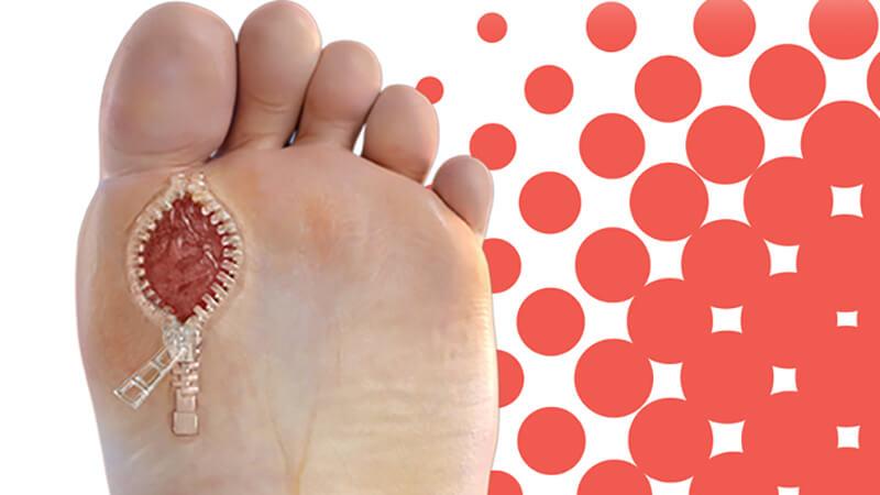 راهکارهای درمانی زخم پای افراد دیابتی چه مواردی است؟