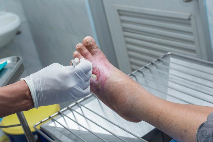 آیا میدانید که زخم پای دیابتی چیست و چگونه شکل میگیرد؟