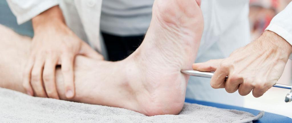 بروز زخم پای دیابتی