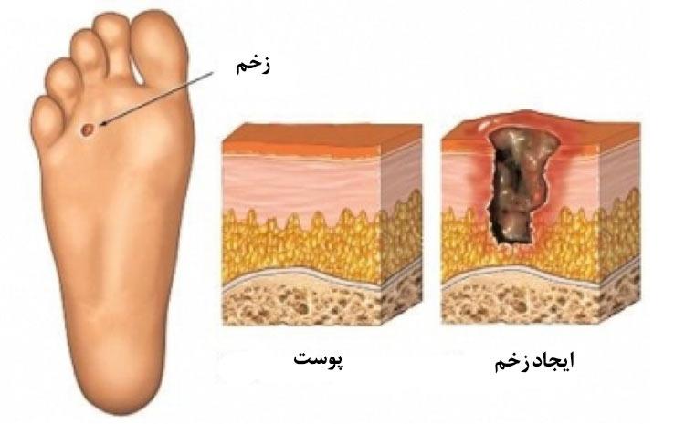 نفوذ زخم و عفونت به استخوان ها