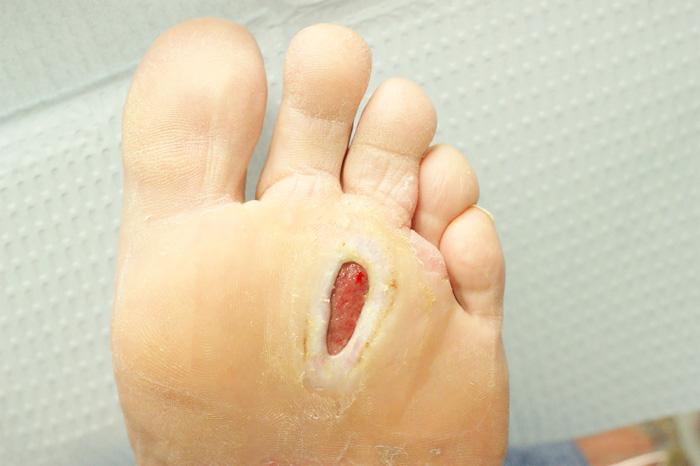 درمان زخم پای دیابتیها با سرکه سیب