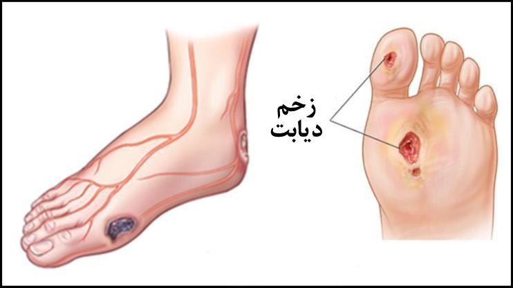 تعریف زخمهای درجه ۲