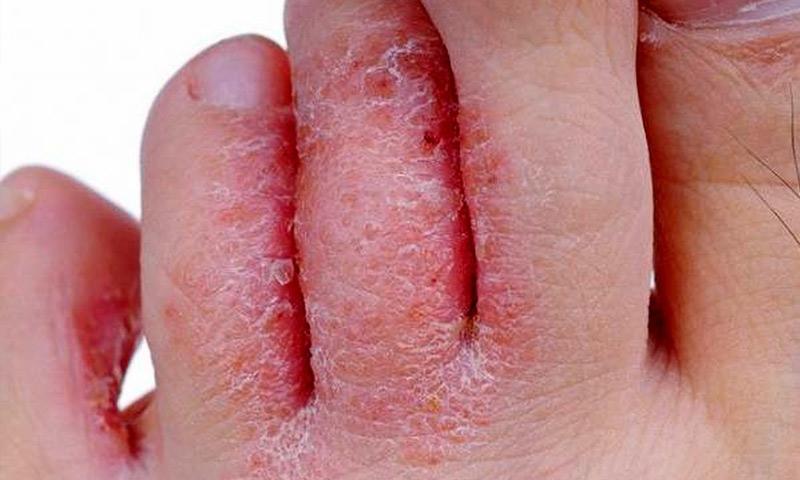عفونتهای پوستی