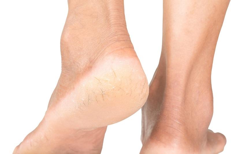 لازم است که درجه بندی زخم پای دیابتی را بشناسید