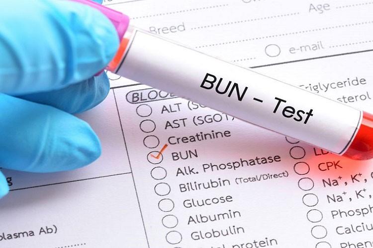یکی از مهم ترین اقدام ها برای تشخیص بهتر وضعیت بیماری