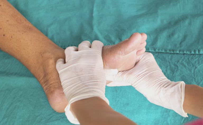 در مورد زخم پای دیابتی باید به چه نکاتی توجه داشت؟