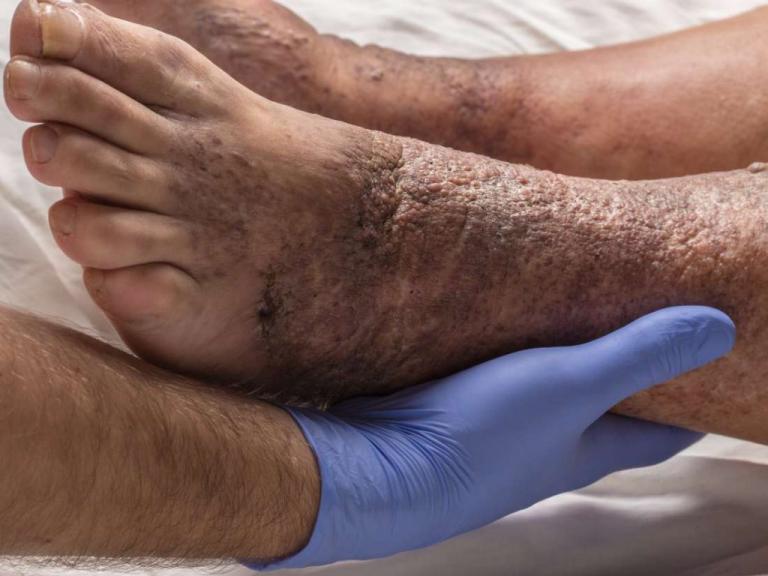 روند ایجاد زخم پای دیابتی چگونه است؟