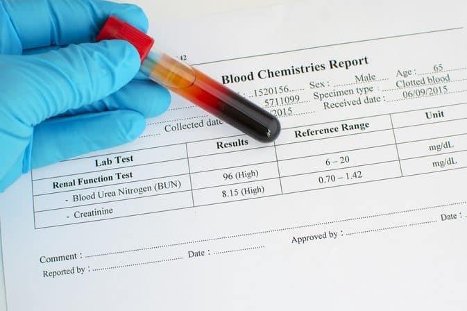 bun در آزمایش خون چیست
