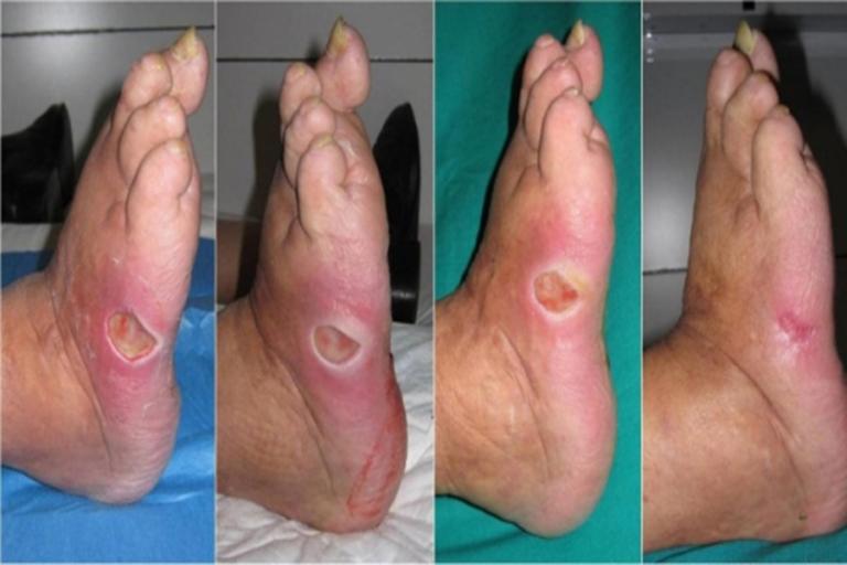 با پیشرفت بیشتر زخم پای دیابتی ممکن است که بافت سیاه رنگی در این قسمت مشاهده شود