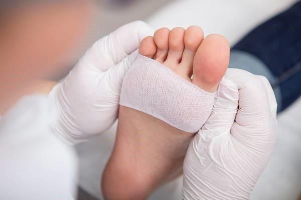 در کلینیک زخم پای دیابتی در صورتی که مداخلات درمانی فایده ای نداشته باشند، از جراحی استفاده می شود