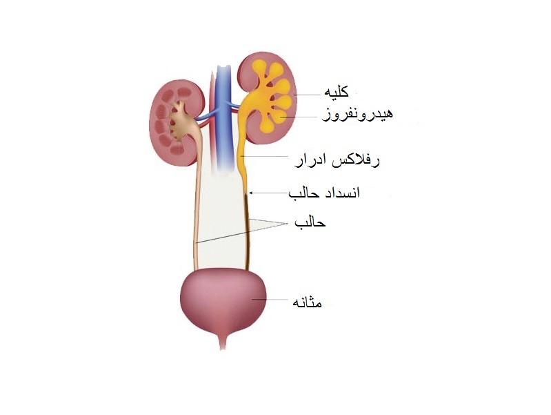 به عنوان قسمتی از پنل آزمایش های خون که برای تعیین بیماری هایی مانند موارد ذیل مورد کاربرد قرار می گیرد: