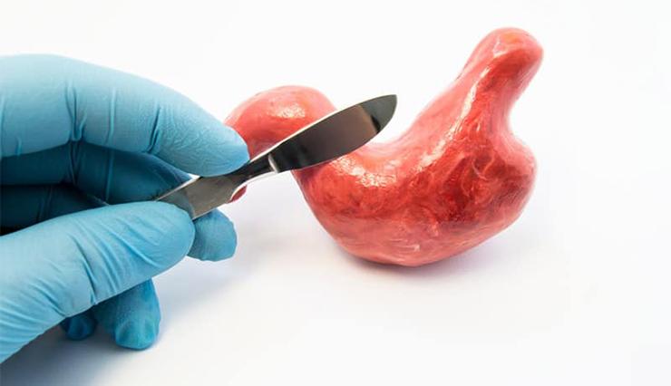 اغلب عملهای جراحی چاقی نیاز به بستری های طولانی مدت در بیمارستان ندارند