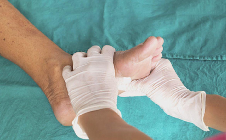 نحوه پانسمان زخم پای دیابتی