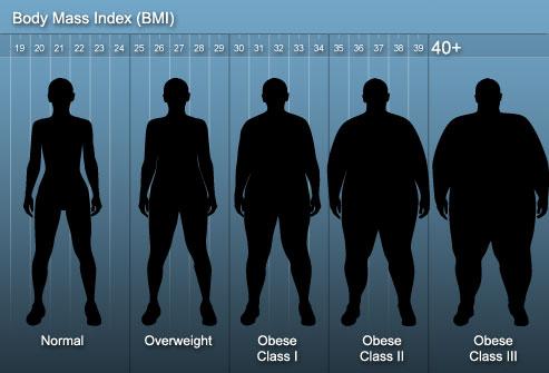 انجام برخی از عملهای جراحی چاقی باعث محدود کردن میزان غذای مصرفی افراد در طول روز میباشد