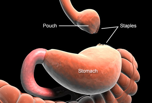 عمل جراحی چاقی کنارگذاری معده به چه صورت است؟