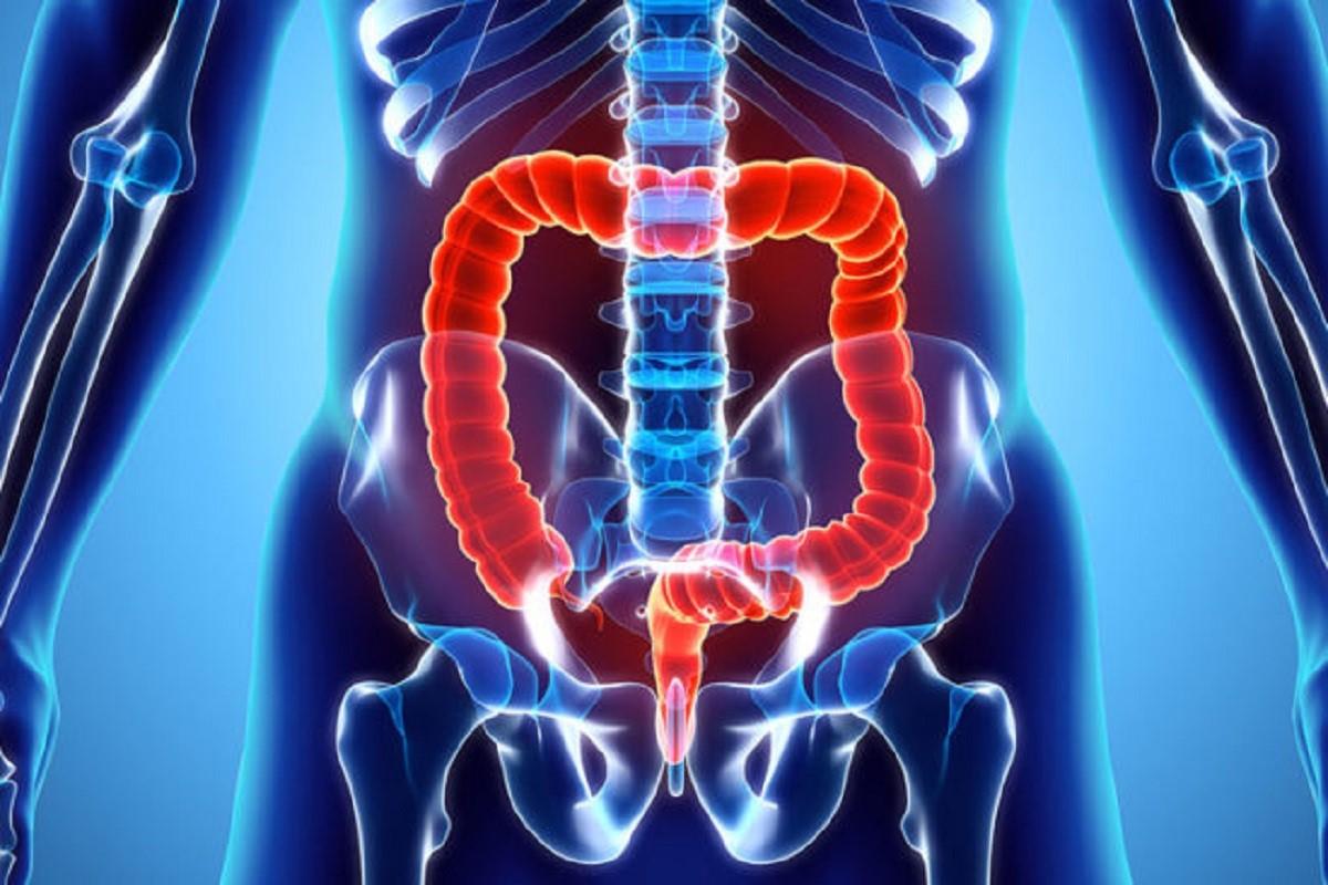 بررسی جراحی سرطان روده بزرگ