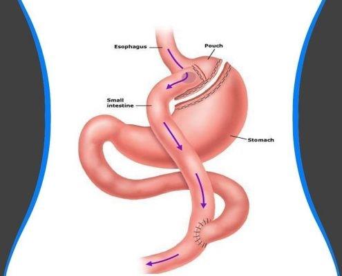 بسیاری از زنان در چرخه قاعدگی و باروری خود با اضافه وزن قابل توجهی روبرو می شوند