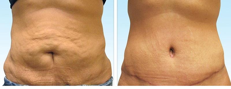 ابدومینوپلاستی راهکاری است که به کمک آن میتوانید سطح شکم خود را صاف کنید