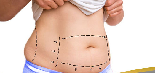 ترمیم نواحی شکمی از طریق عمل ابدومینوپلاستی