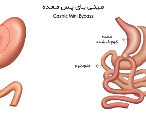 قبل از بارداری، سطح کلسیم، آهن (فریتین) و ویتامین B12 خود را بررسی کنید