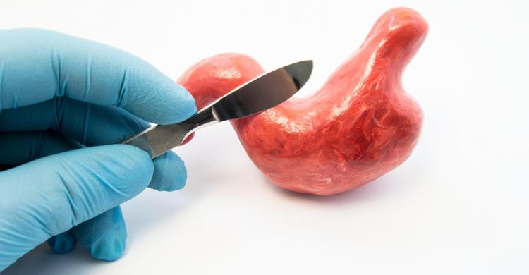 جراحی لاغری، بهترین روش کاهش وزن