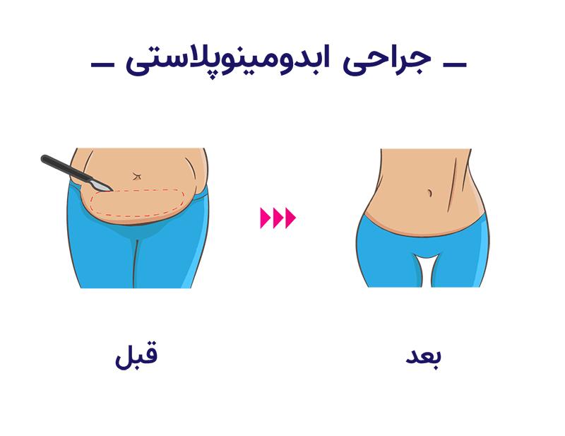 برای این که زمان ترمیم ناحیه شکم کمتر باشد، استفاده از این موارد کمک بسیاری خواهند کرد