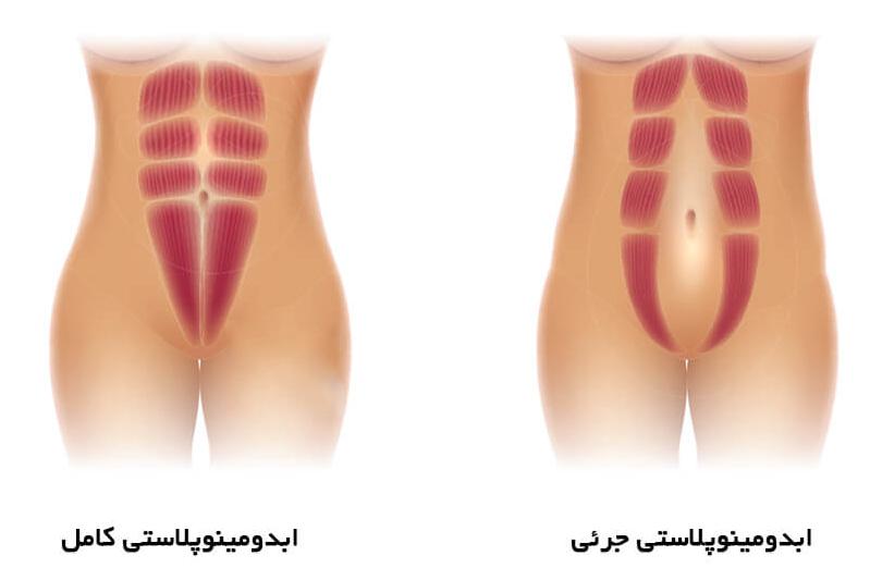موارد زیر در ابدومینوپلاستی جزئی تاثیرگذار میباشد.