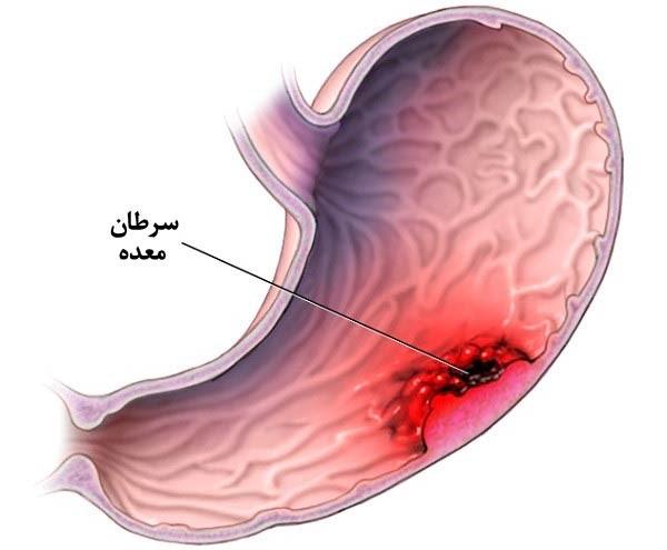 تشخیص و درمان سرطان معده در لاپاراسکوپی معده چگونه است؟