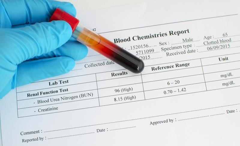 چک کردن مکرر سطح گلوکز خون
