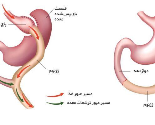 متخصصین در سالهای گذشته برای اولینبار این نوع عمل جراحی را انجام دادند