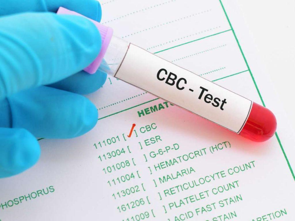 بررسی موارد لازم در آزمایش قند خون