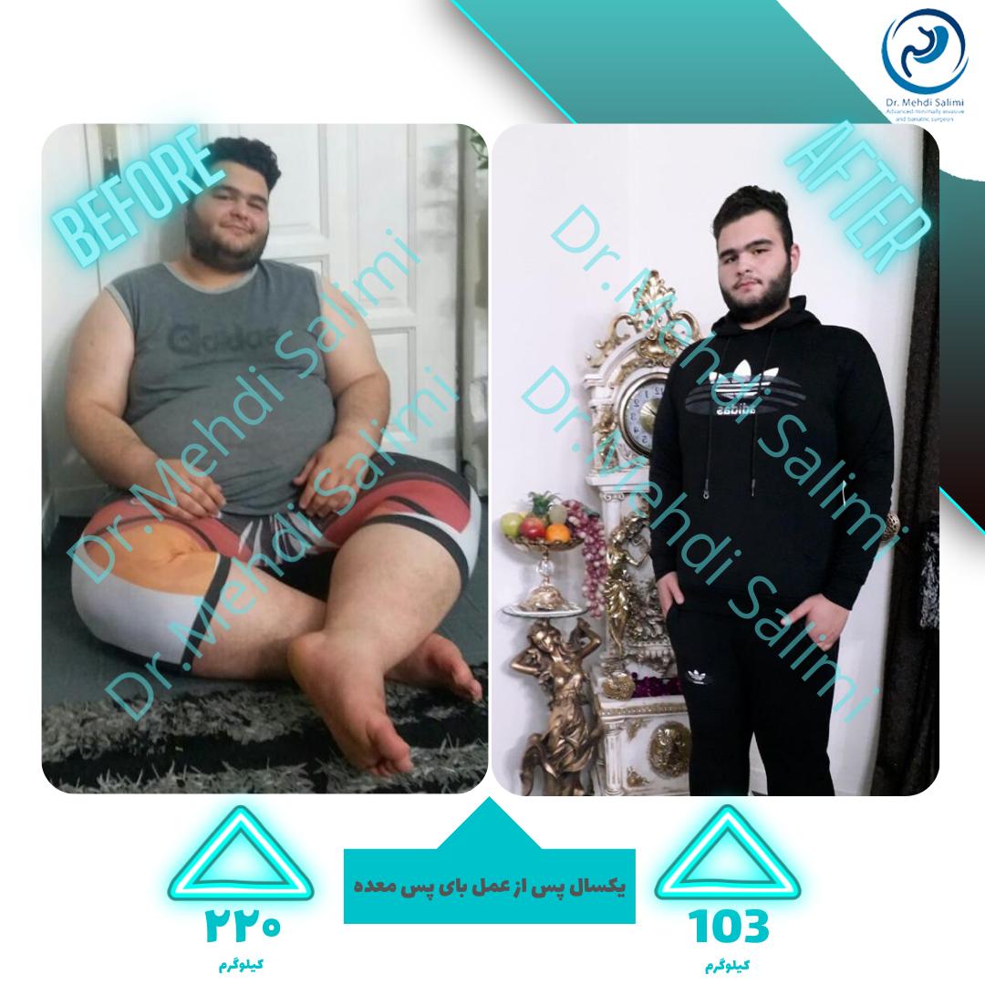 تصاویر قبل و بعد عمل بای پس معده