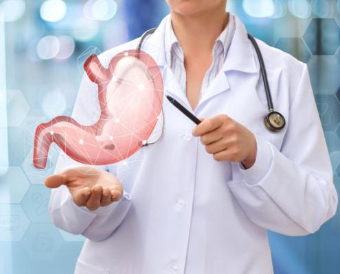 آیا در زمینه ی شیوه ی اجرای عمل جراحی اسلیو معده اطلاعاتی دارید؟