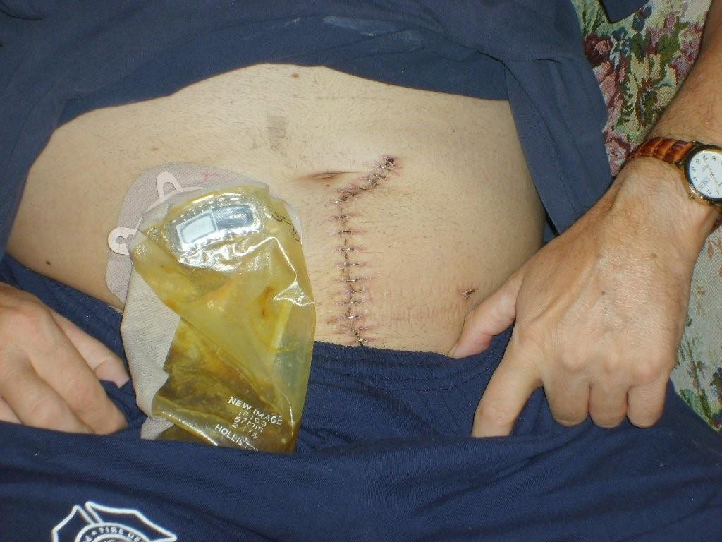 کوتاه شدن مدت زمان جراحی در عمل جراحی لاپاراسکوپی با کمک روبات ها: